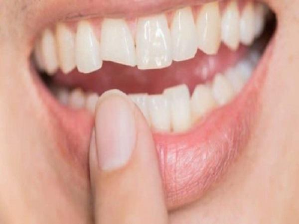 Mẻ răng có điềm báo gì? tốt hay xấu?