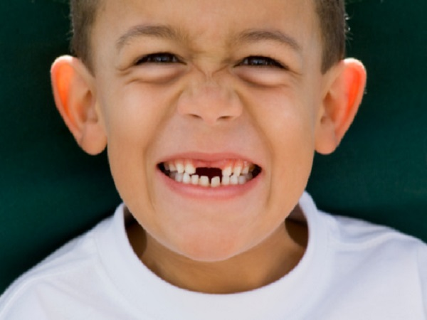 Gãy răng điềm gì? gãy răng có phải điềm xấu không?