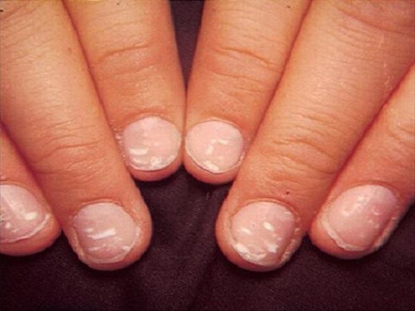 Móng tay có vết trắng có điềm báo gì? tốt hay xấu?